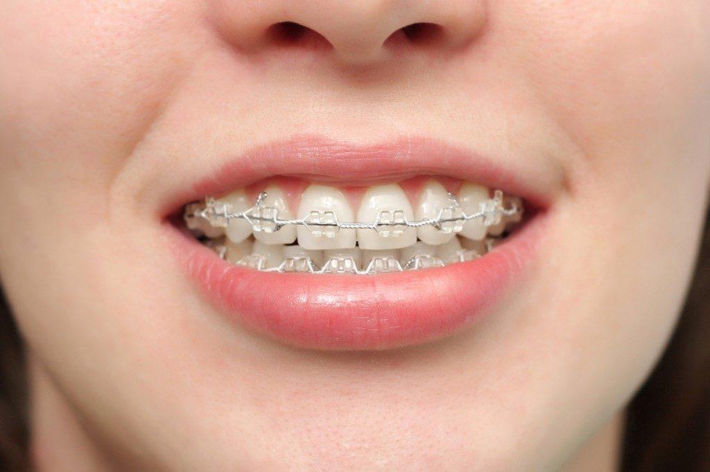dec16-326(2)_orthodontie_adulte