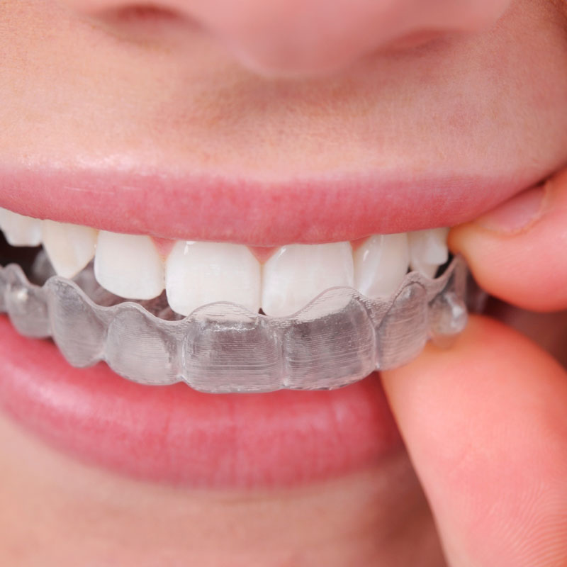 dec16-32_Qu'est-ce que l'orthodontie invisalign image 1